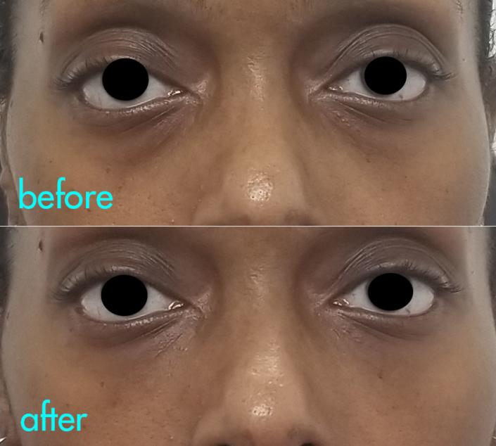 Dr. Kotlus eye filler nyc