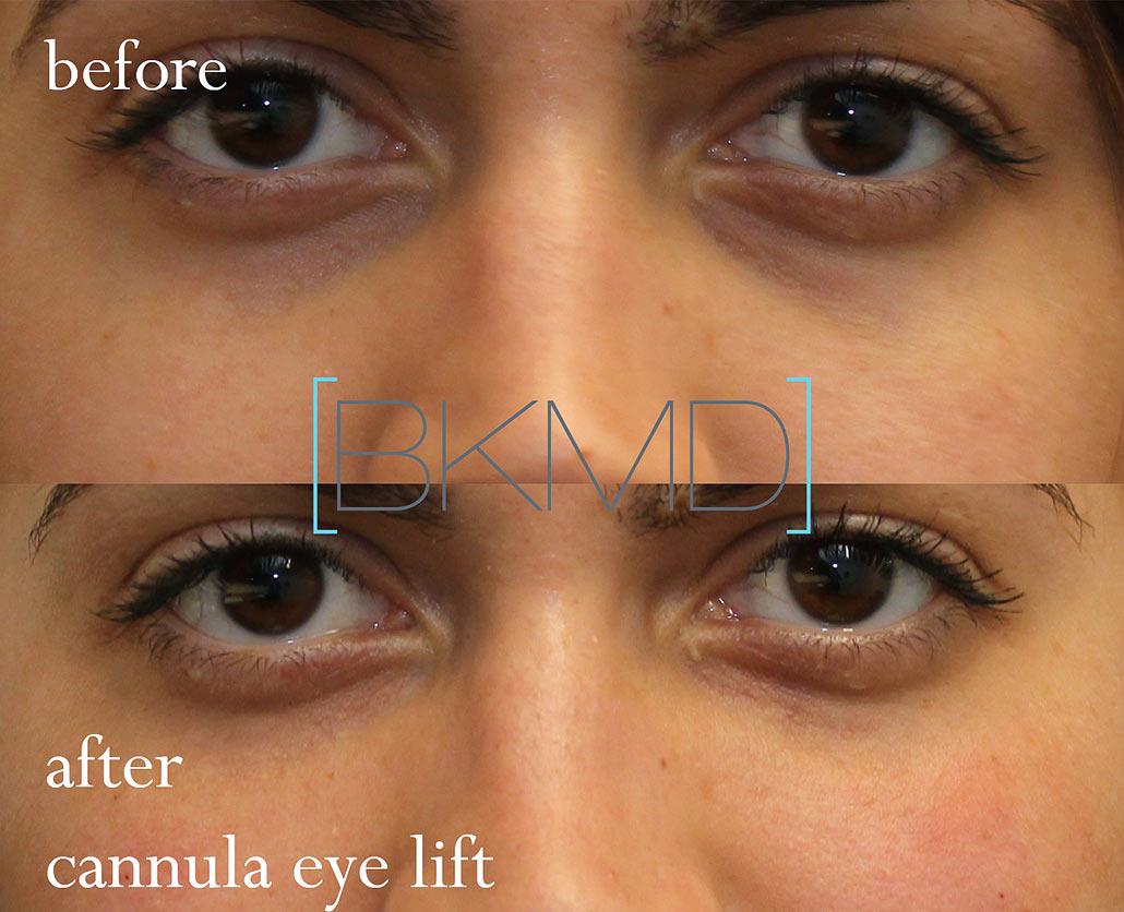 under eye filler nyc