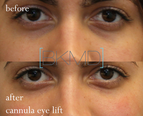 Treat light skinned under eye bags with Dr. Kotlus' Cannula lift treatment
