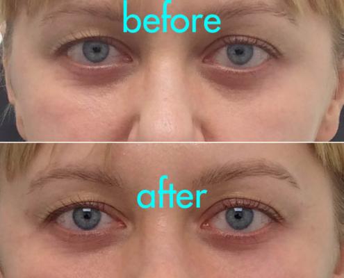Cannula Under Eye Treatment