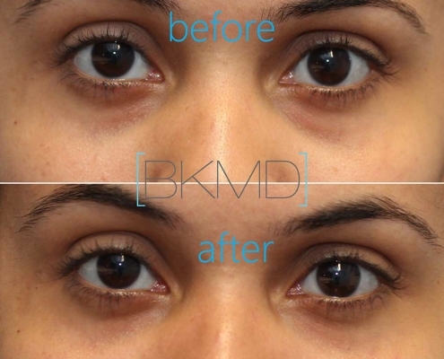 Cannula Eye Treatment Before and After