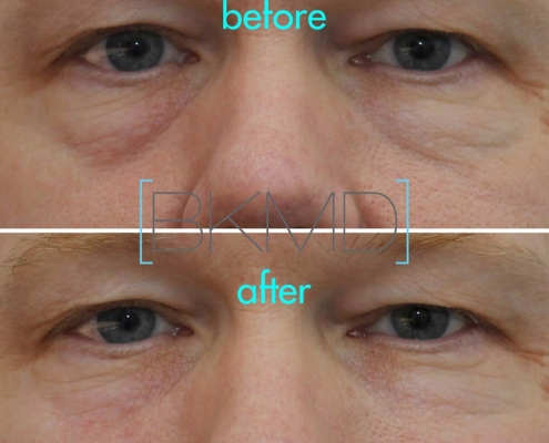 Remove teh appearance of deepend eye bags with Dr. Kotlus' Cannula eye treatment