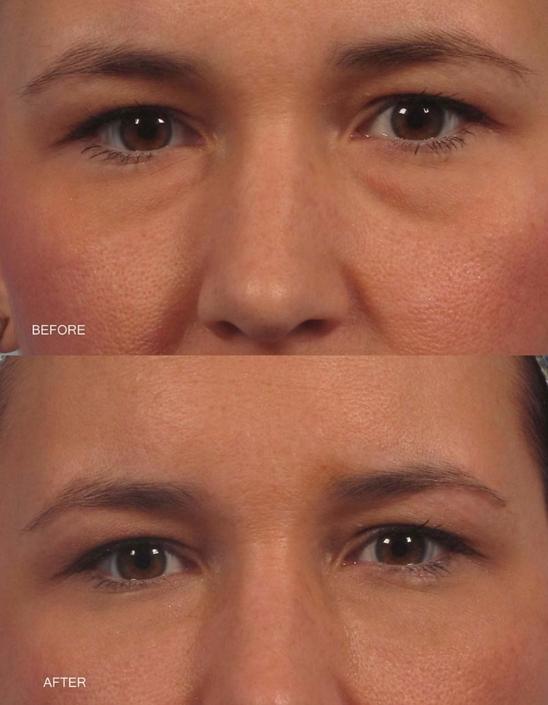 Dr. Kotlus Cannula Under Eye Filler