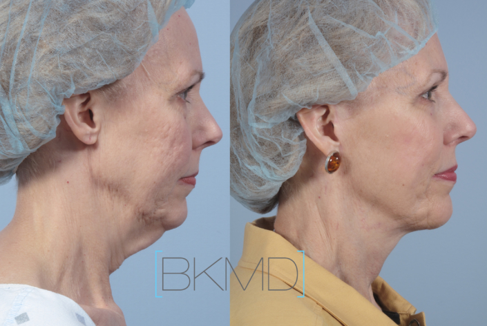 neck lift nyc laser