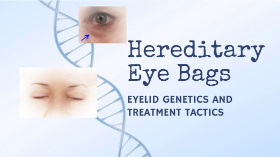 Hereditary eye bags and how to outsmart eyelid genetics