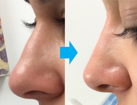 liquid rhinoplasty nyc