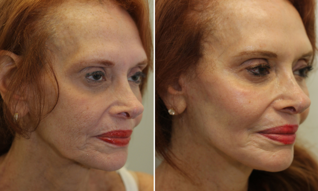 facelift laser nyc