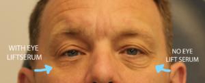 tensate eye lift