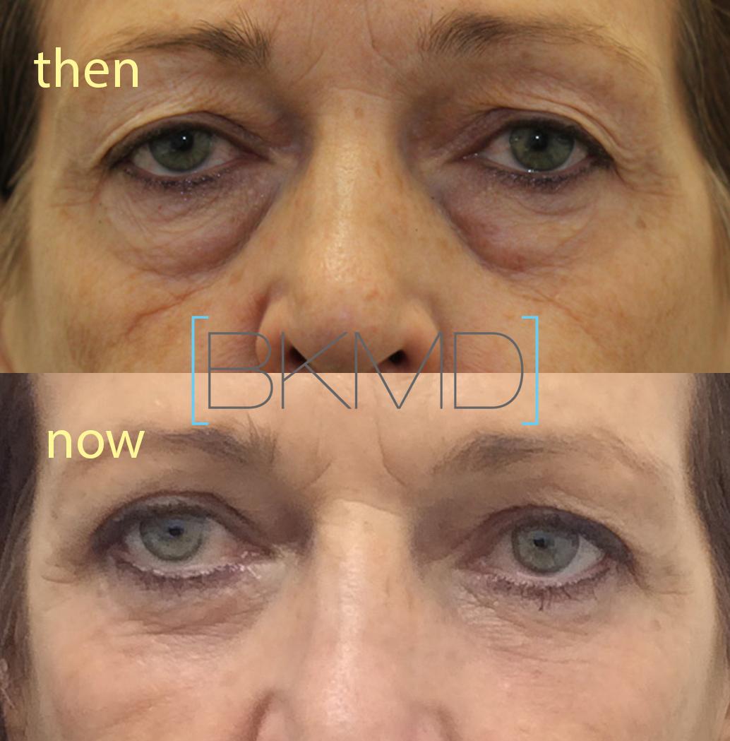 eye bag treatments