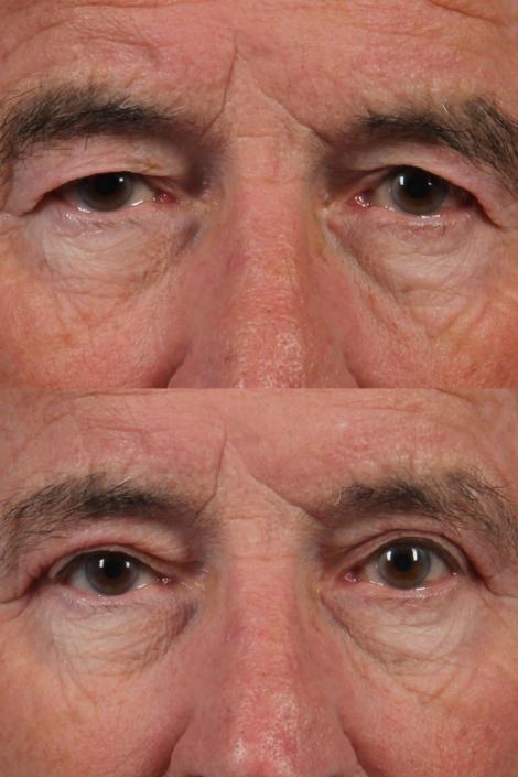 man upper eyelids nyc