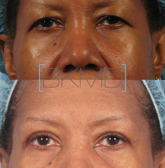 oculoplastic nyc