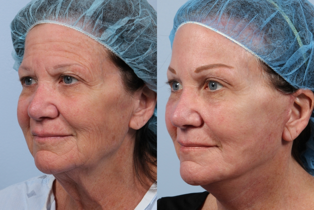 facelift with laser nyc