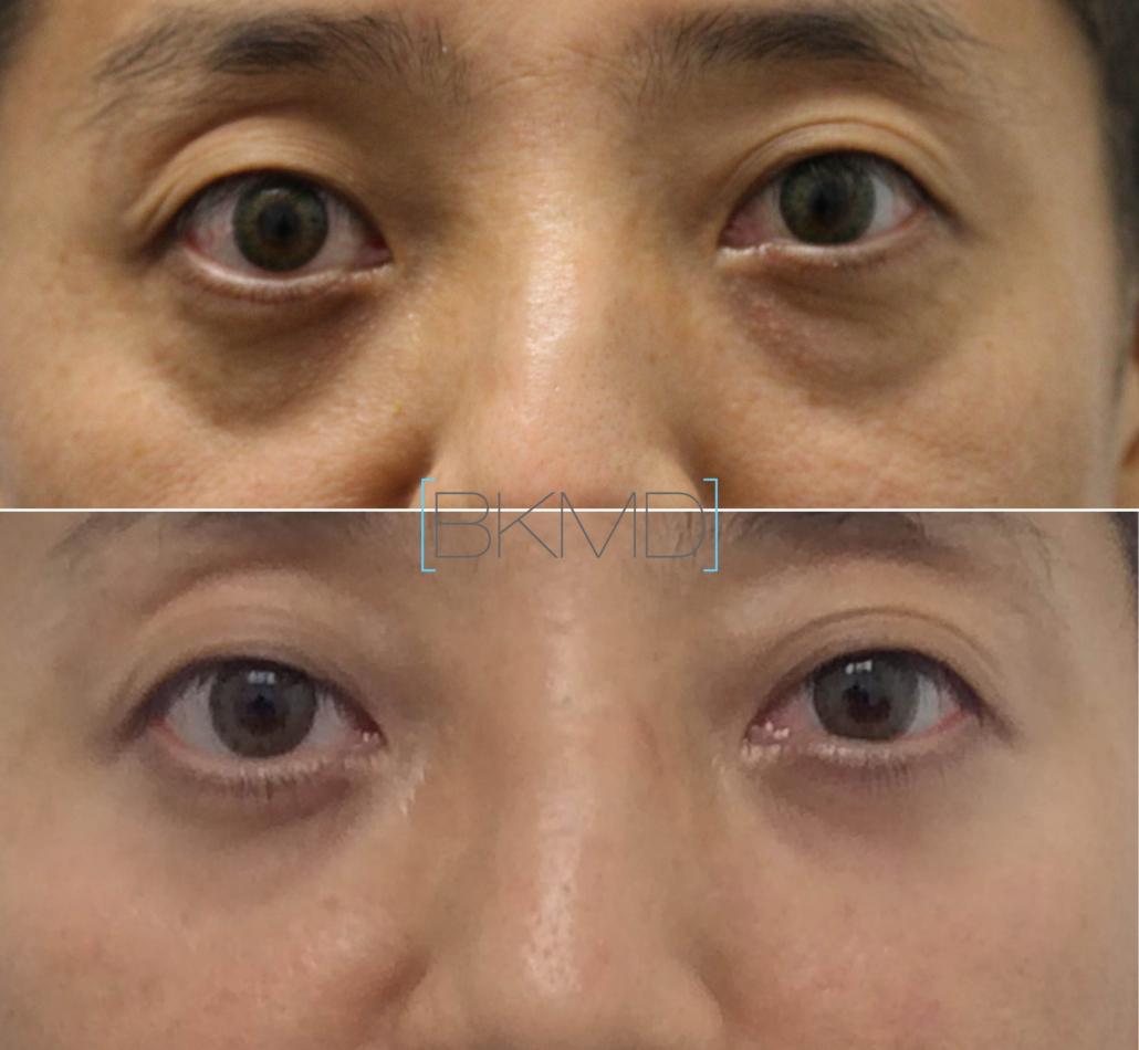 male lower eye lift nyc
