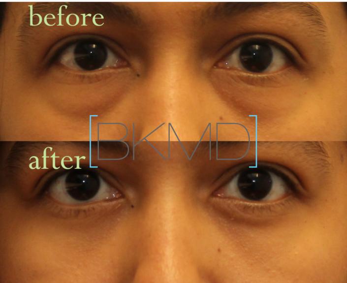eye bag surgery nyc