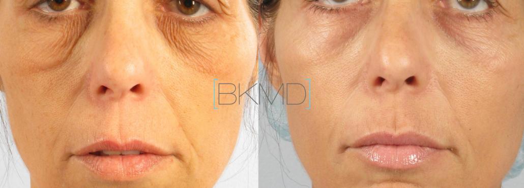 eyelid skin laser nyc