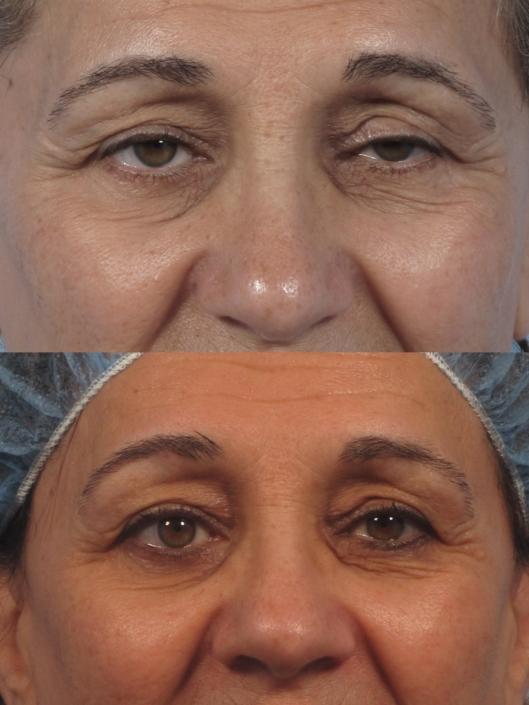 eyelid ptosis nyc