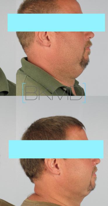 male neck lipo