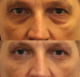 male blepharoplasty nyc